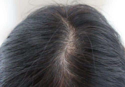 自分の頭皮